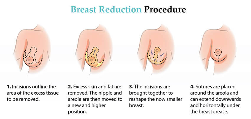 Breast Reduction Surgery Procedure