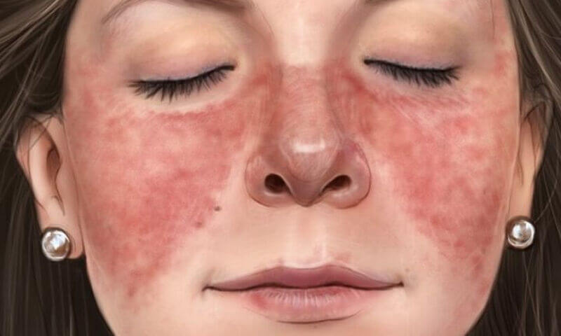 lupus butterfly rash